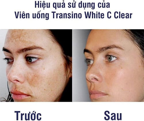 vien-uong-trang-da-transino-white-c-clear-review