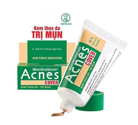 kem-tri-mun-acnes-co-tot-khong